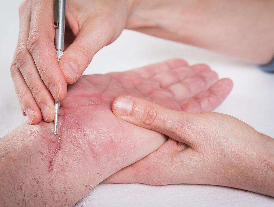 Akupunkt-Massage-Narbenbehandlung-Fitness-Wohlfühlen-Issum